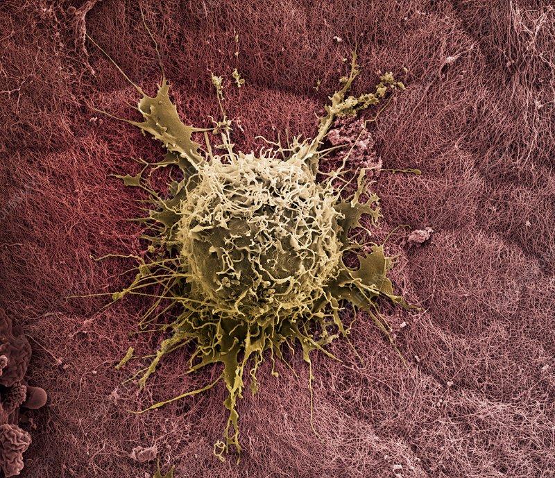 Bone marrow stem cell on cartilage, SEM